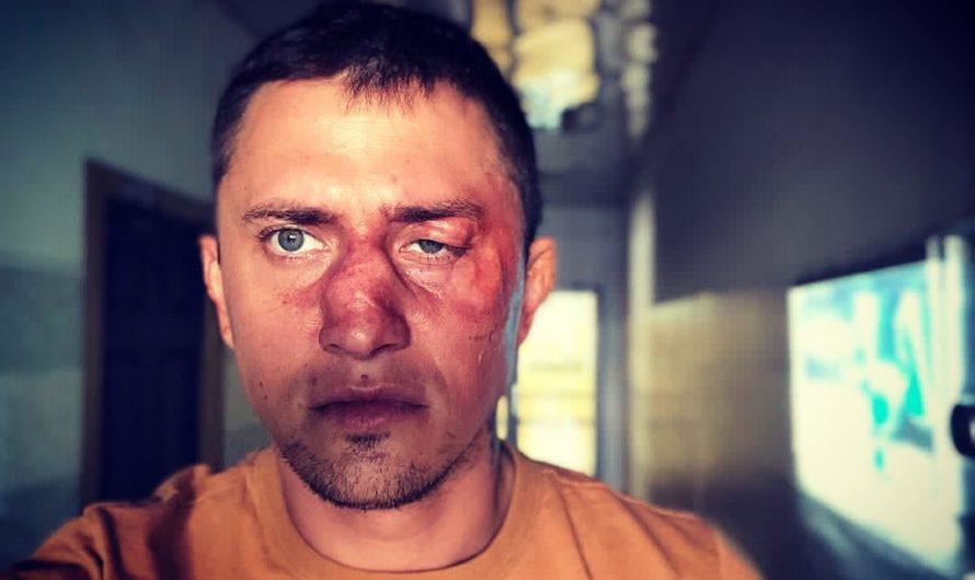 Владимир Семенов – кто избил Павла Прилучного